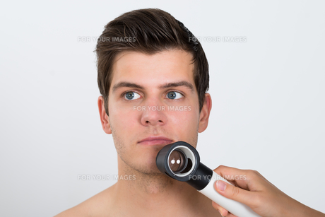 Person Examining Man Face With Dermatoscopeの素材 [FYI00781274]
