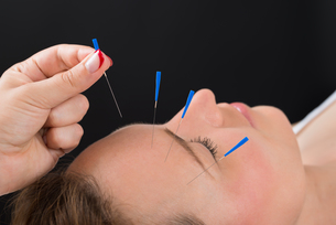 Person Putting Acupuncture Needle On Face Of Womanの写真素材 [FYI00783172]