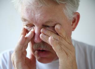Man has nasal congestionの素材 [FYI00783411]