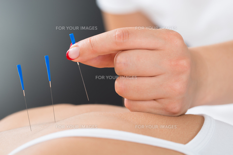 Therapist Putting Acupuncture Needle On Woman's Backの素材 [FYI00784952]