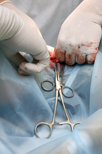 surgery in dogsの素材 [FYI00799077]