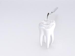 dental instrumentsの素材 [FYI00803063]