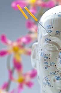 acupuncture head modelの写真素材 [FYI00805685]