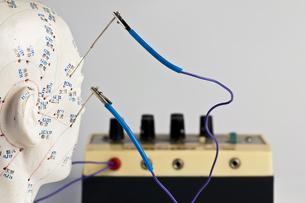 electro-acupunctureの写真素材 [FYI00805686]