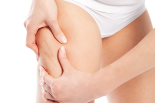 cellulite - body and beautyの写真素材 [FYI00819186]