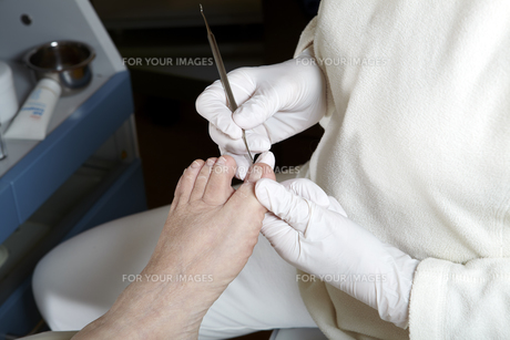 podiatry - foot care - chiropodyの写真素材 [FYI00827803]