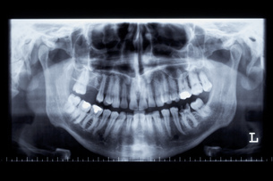 panoramic shot of a human jaw by xの写真素材 [FYI00832992]