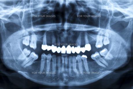 jaw of an adult with bad teeth in the radiographの素材 [FYI00838785]