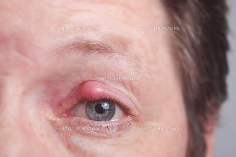 stye on the eyelidの写真素材 [FYI00839928]