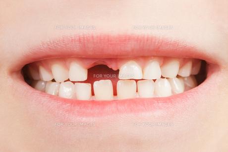 child with tooth gapの素材 [FYI00846733]