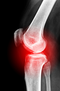 painful kneeの素材 [FYI00852998]