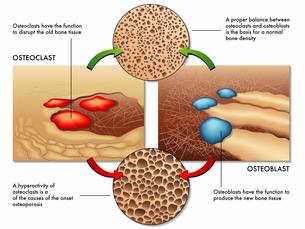 osteoporosisの素材 [FYI00870062]