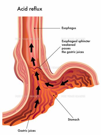 stomachの写真素材 [FYI00870567]