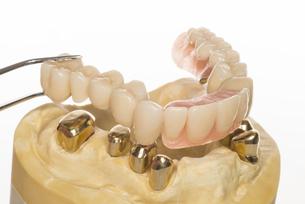 dental model - telekopkombinationsprotheseの素材 [FYI00870755]