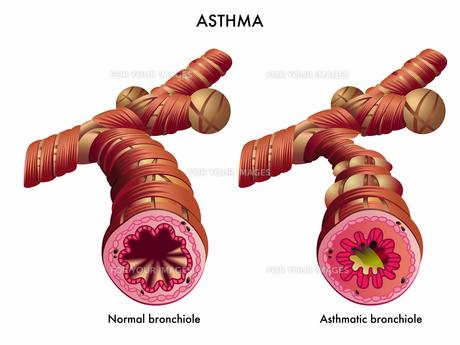 asthmaの素材 [FYI00871647]