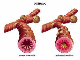 asthmaの写真素材 [FYI00871647]