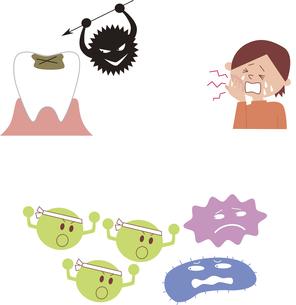 虫歯と虫歯菌、虫歯に痛む子供、善玉菌と悪玉菌の素材 [FYI01040917]