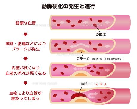 動脈硬化の発生と進行のイラストのイラスト素材 [FYI01220033]