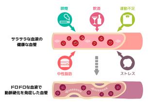サラサラ血液の健康な血管が不健康要因により、ドロドロ血液になり動脈硬化を引き起こすイラストのイラスト素材 [FYI01220036]