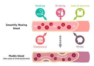 サラサラ血液の健康な血管が不健康要因により、ドロドロ血液になり動脈硬化を引き起こすイラストのイラスト素材 [FYI01220037]