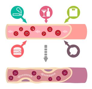 サラサラ血液の健康な血管が不健康要因により、ドロドロ血液になり動脈硬化を引き起こすイラストのイラスト素材 [FYI01220038]