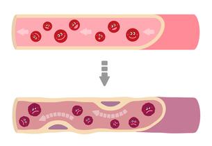 サラサラ血液の健康な血管が不健康要因により、ドロドロ血液になり動脈硬化を引き起こすイラストのイラスト素材 [FYI01220039]