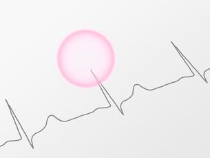 心電図とピンクのサークルの写真素材 [FYI01501660]