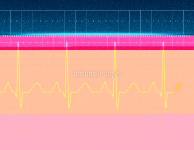 心電図の波形のイラスト素材 [FYI01642789]