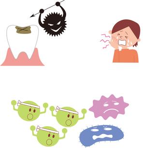 虫歯と虫歯菌、虫歯に痛む子供、善玉菌と悪玉菌のイラスト素材 [FYI01653512]