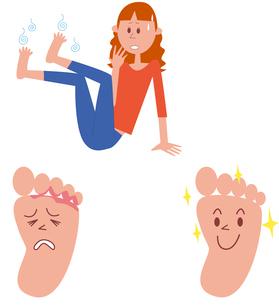 水虫に悩む女性、水虫の足、水虫が治った足のイラスト素材 [FYI01654033]