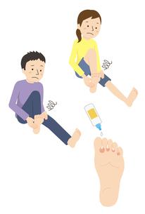 水虫の足、水虫に悩む男性と女性のイラスト素材 [FYI01655083]