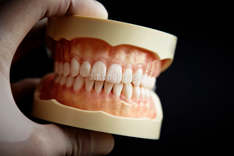 歯の模型の写真素材 [FYI01807309]
