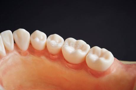 歯の模型の写真素材 [FYI01807639]