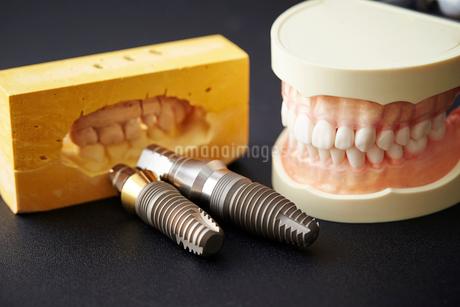 歯型とインプラントのボルトの写真素材 [FYI01807691]