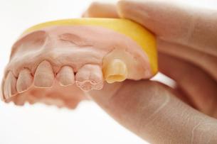歯型の写真素材 [FYI01808247]