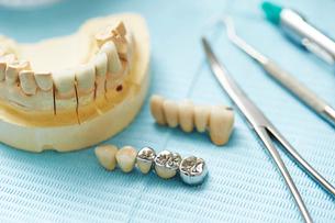 歯科治療の写真素材 [FYI01808263]