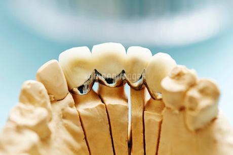 歯型の写真素材 [FYI01808308]