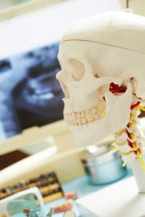 歯科治療の写真素材 [FYI01808316]