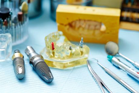 インプラント治療の写真素材 [FYI01808354]
