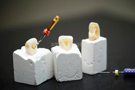 歯科治療の写真素材 [FYI01808381]
