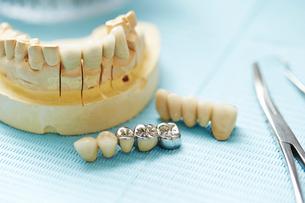 歯科治療の写真素材 [FYI01808417]