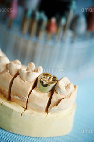 金歯の写真素材 [FYI01808431]