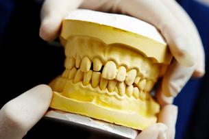 歯型の写真素材 [FYI01808709]