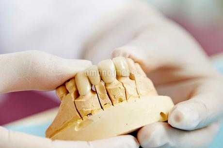 歯科治療の写真素材 [FYI01808737]