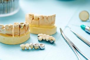 歯科治療の写真素材 [FYI01808771]