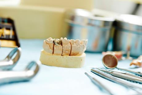 歯科治療の写真素材 [FYI01808775]