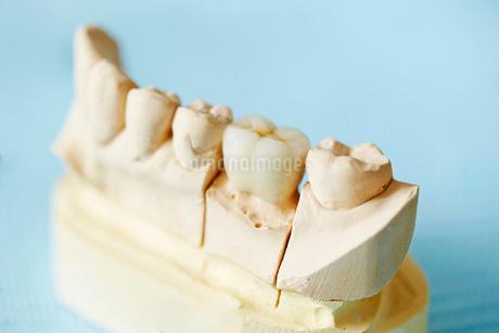 差し歯の写真素材 [FYI01808829]
