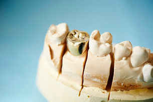 金歯の写真素材 [FYI01808862]