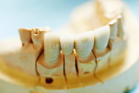 歯型の写真素材 [FYI01808917]