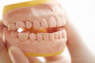 歯型の写真素材 [FYI01808970]